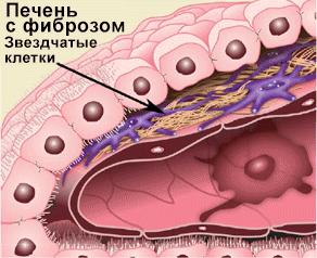 Развитие фиброза печени