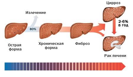 Хронический гепатит C лечение
