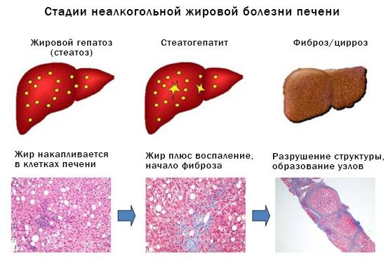 Печень по типу жирового гепатоза лечение