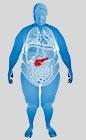 Ожирение, НЖБП, неалкогольный стеатопанкреатит и сахарный диабет 2 типа